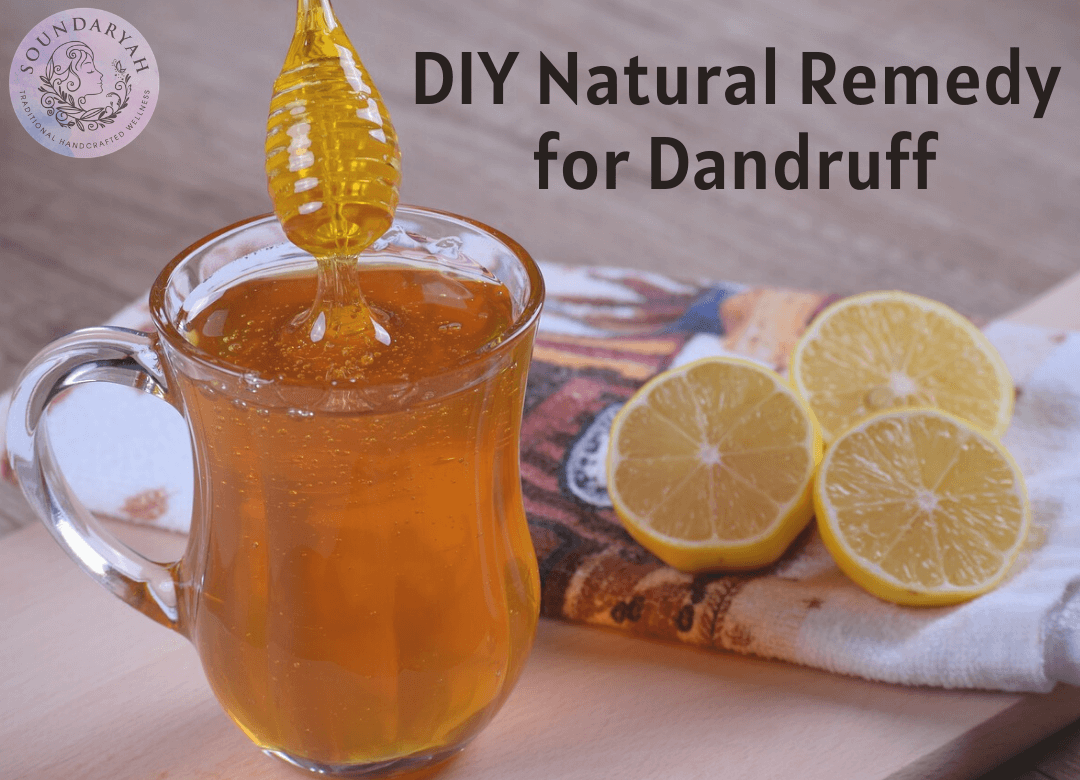 Struggling to get rid of those pesky white flakes on your hair and scalp? This DIY natural remedy for dandruff will get rid of them for good!